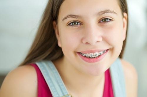 teen girl with braces